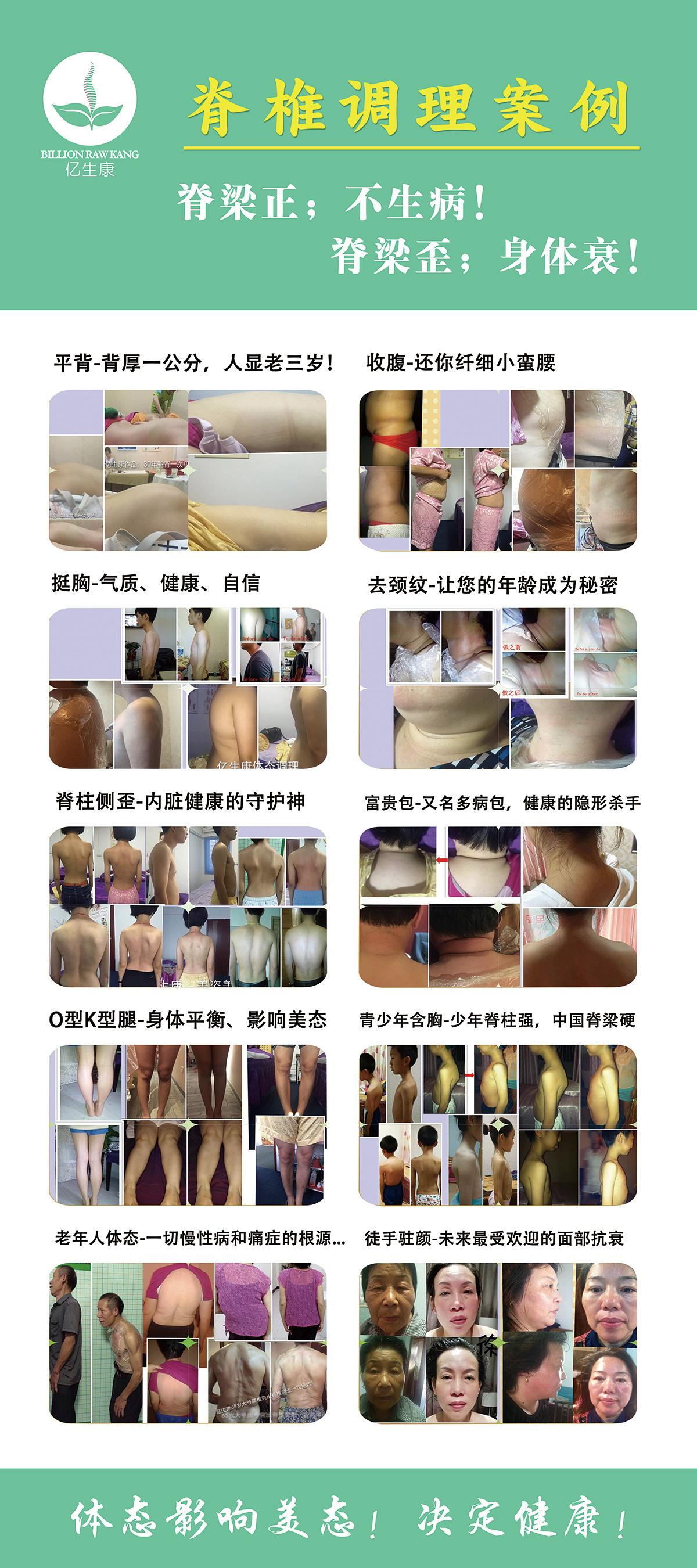 脊椎调理案例
